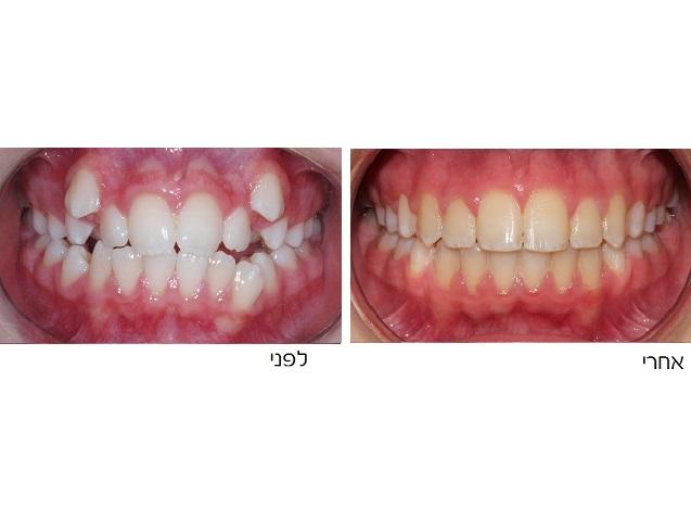 שיניים בולטות לפני ואחרי