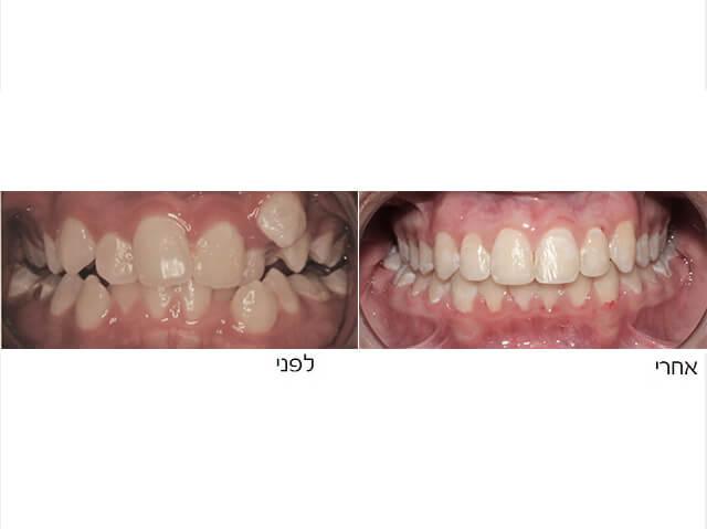 יישור שיניים עקומות