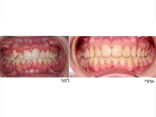 שיניים לא ישרות
