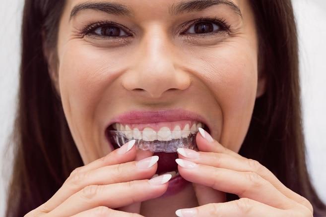 יישור שיניים אינויזליין invisalign