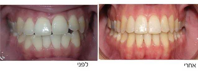 גשר בשיניים לפני ואחרי