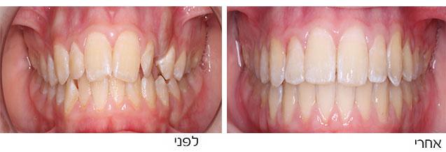 מטופלת עם צפיפות שיניים
