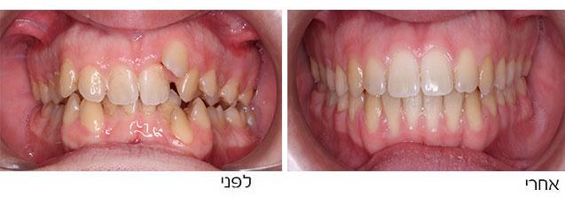 צפיפות שיניים ומנשך עמוק