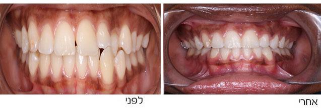 ניב כלוא וחוסר של שן טוחנת